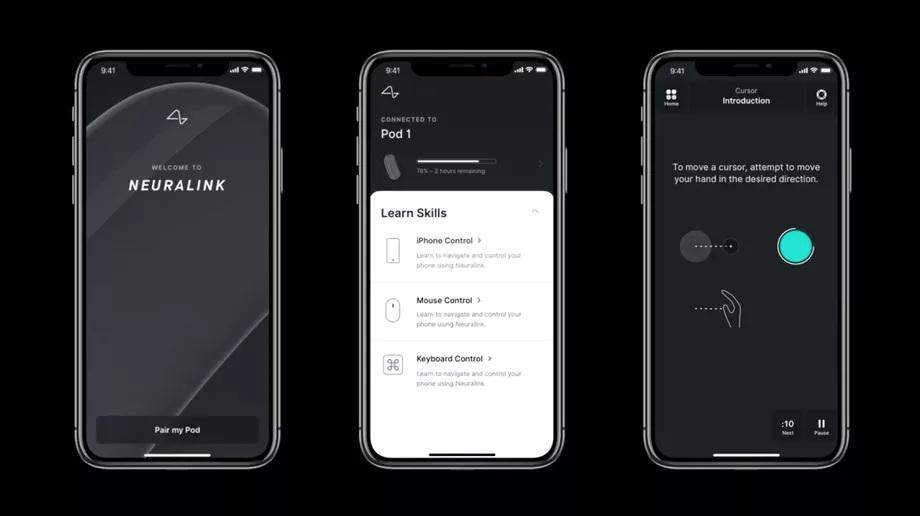 Neuralink iPhone alkalmazás